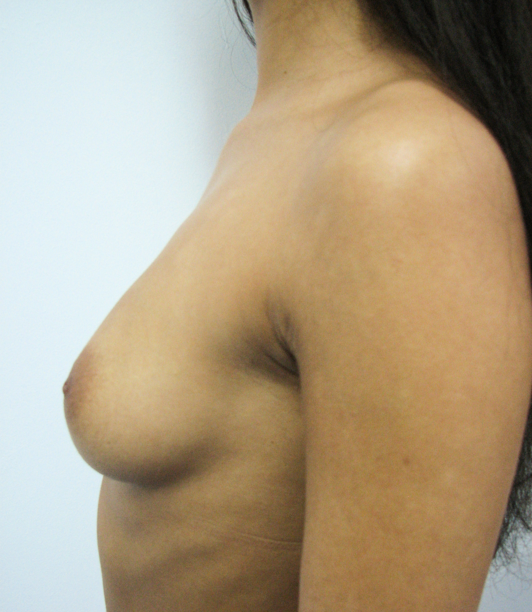 Before- Implant mamar