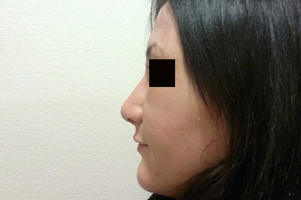 After-Rinoplastie