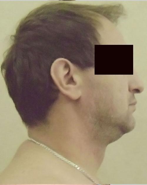 Before-Informatii pacient: Lipoaspiratie