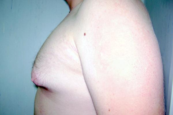 Before- lipoaspiratie