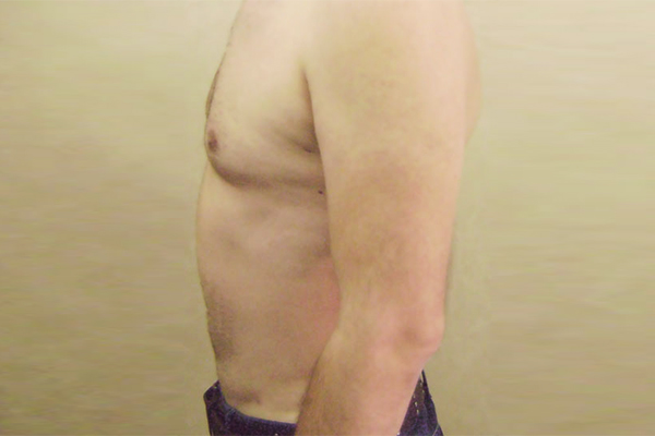 After- lipoaspiratie