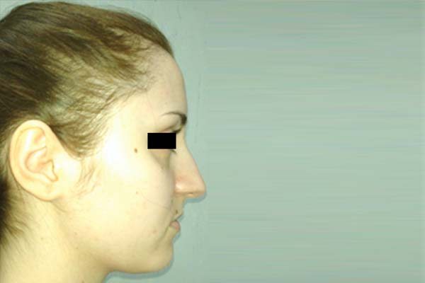 Before-Rinoplastie