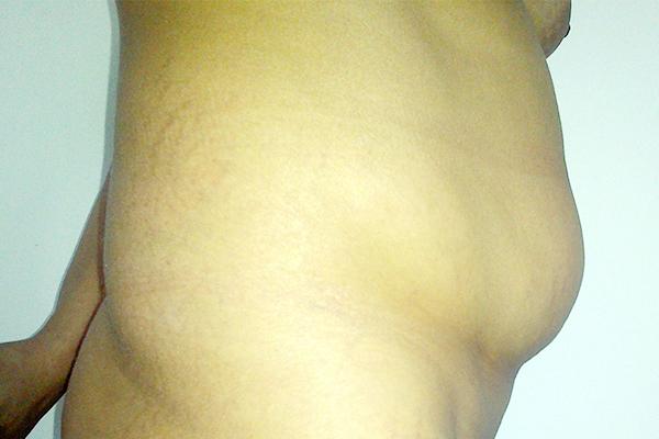 Before-lipoaspiratie
