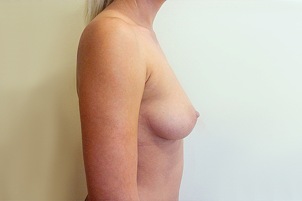 Before-Implant mamar
