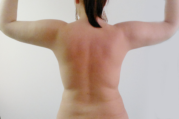 After-lipoaspiratie
