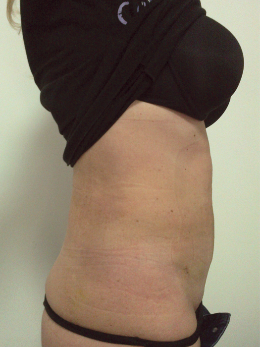 After-Informatii pacient: Lipoaspiratie