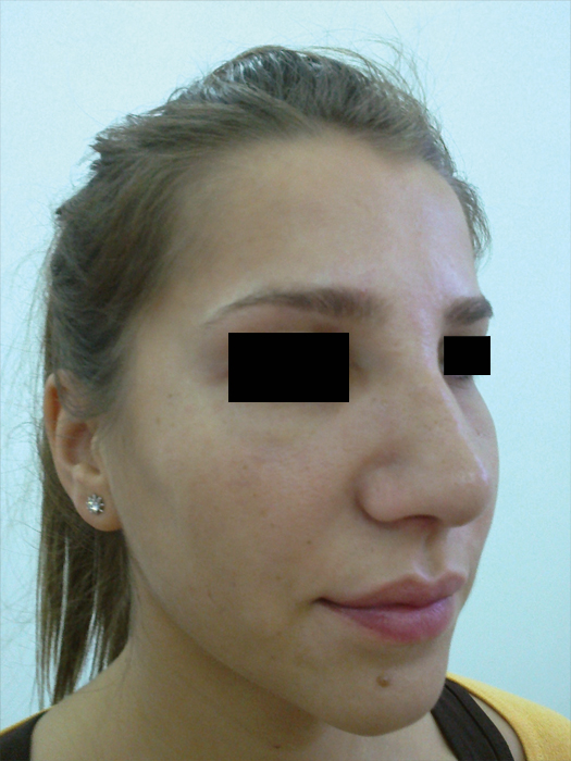 Before-Informatii pacient: Rinoplastie